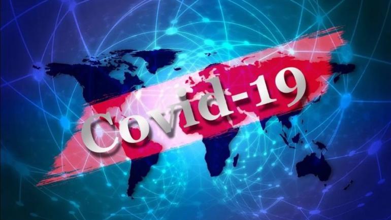 Proposition de ECAM pour limiter l´impact négatif du COVID-19 sur les PME camerounaises